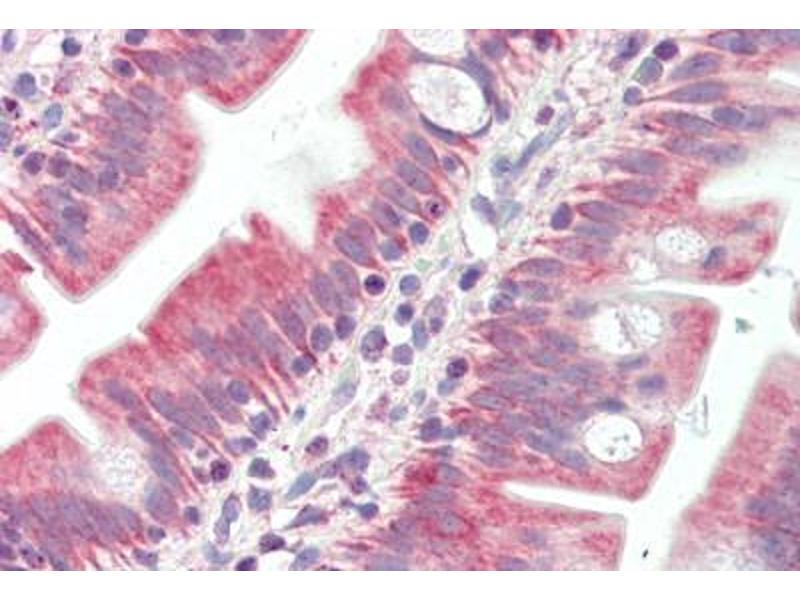 Immunohistochemistry (Paraffin-embedded Sections) (IHC (p)) image for anti-BAK1 antibody (BCL2-Antagonist/killer 1) (ABIN461962)