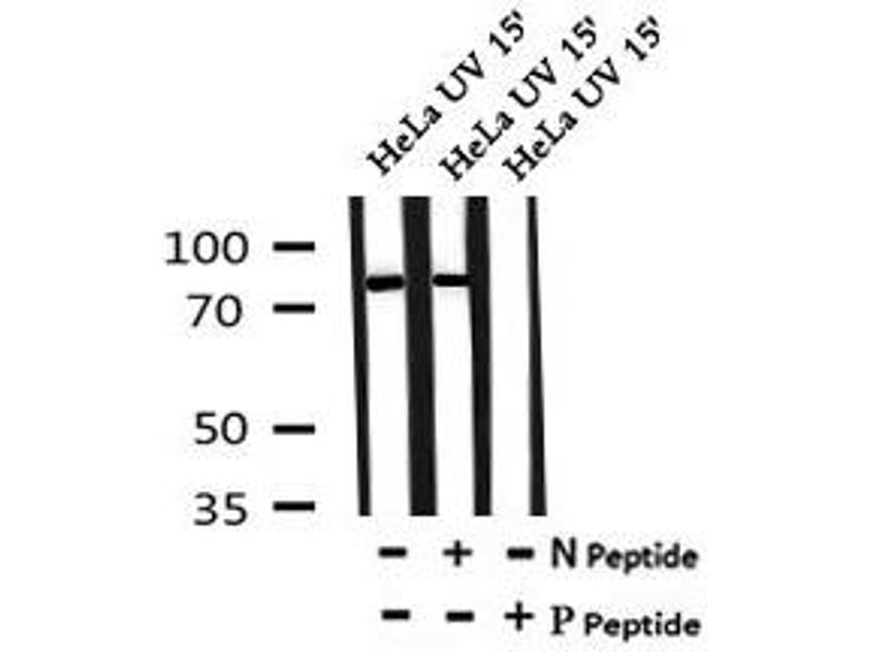 Image no. 4 for anti-RAD17 Homolog (S. Pombe) (RAD17) (pSer86) antibody (ABIN6269739)