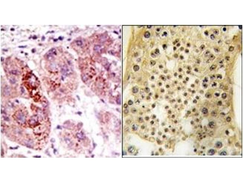 image for anti-Ubiquitin Specific Peptidase 7 (Herpes Virus-Associated) (USP7) (C-Term) antibody (ABIN357533)