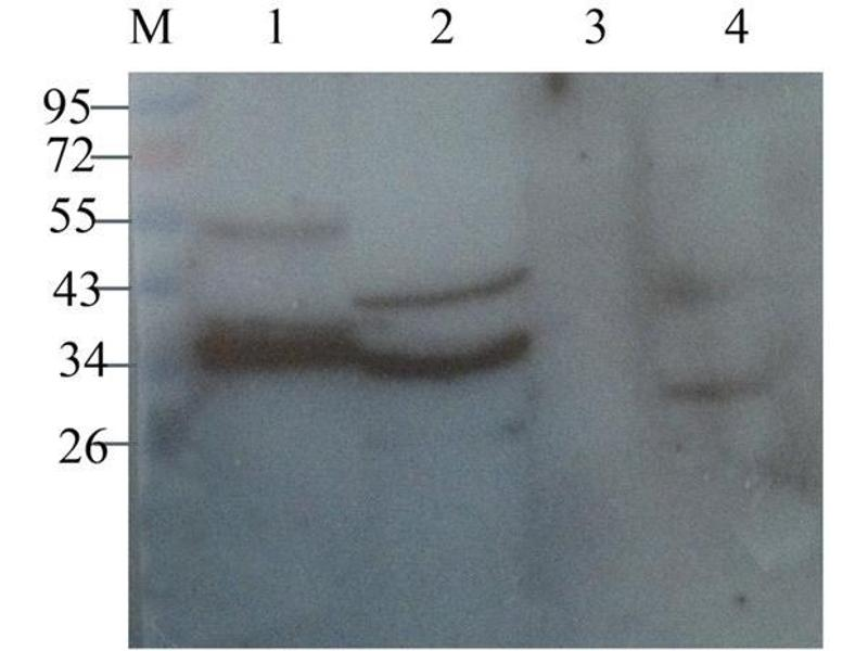 Western Blotting (WB) image for anti-CD4 antibody (CD4 Molecule) (ABIN2506709)