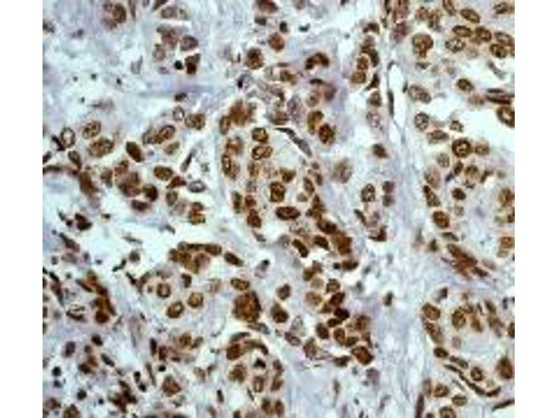 Immunohistochemistry (IHC) image for anti-JAK2 antibody (Janus Kinase 2) (Tyr1007) (ABIN189473)