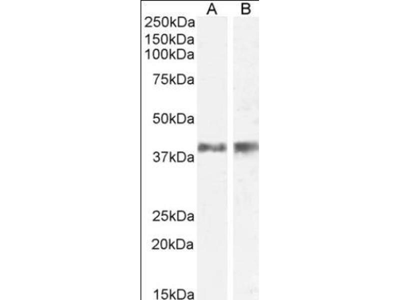 Western Blotting (WB) image for anti-Interleukin 12b (IL12B) antibody (ABIN408670)