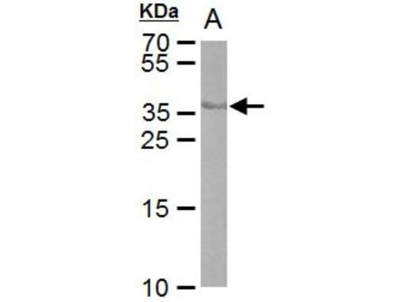 Western Blotting (WB) image for anti-CRE Recombinase (CRE) Antikörper (ABIN4265011)
