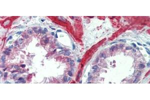 Immunohistochemistry (IHC) image for anti-Insulin-Like Growth Factor Binding Protein 4 (IGFBP4) (Middle Region) antibody (ABIN2782316)