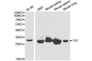 Image no. 1 for anti-Carbonic Anhydrase II (CA2) antibody (ABIN3021972)