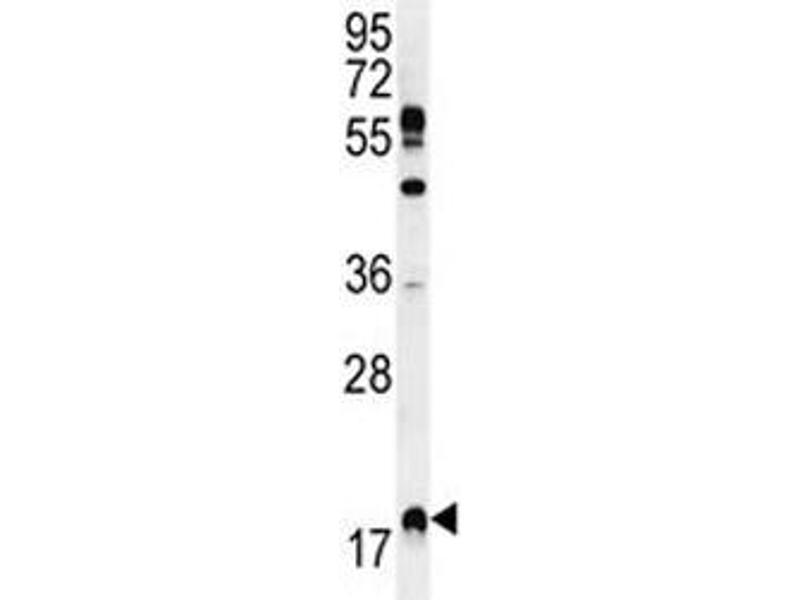 Western Blotting (WB) image for anti-RHEB antibody (Ras Homolog Enriched in Brain) (AA 104-134) (ABIN3032435)