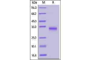 Image no. 2 for SARS-CoV-2 Spike S1 (RBD), (V367F) protein (His tag) (ABIN6952630)