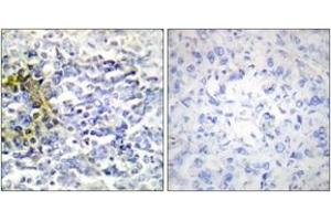 Image no. 1 for anti-Fragile X Mental Retardation, Autosomal Homolog 2 (FXR2) (AA 551-600) antibody (ABIN1533757)