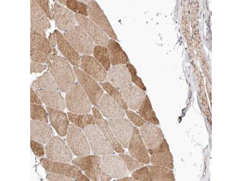 Immunohistochemistry (IHC) image for anti-Mitogen-Activated Protein Kinase 1 (MAPK1) antibody (ABIN4309415)