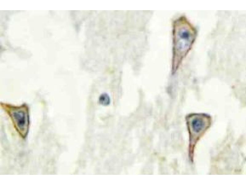 Immunohistochemistry (Paraffin-embedded Sections) (IHC (p)) image for anti-Adenylate Cyclase 1 (Brain) (ADCY1) antibody (ABIN498371)