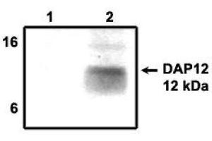Image no. 1 for anti-TYRO Protein tyrosine Kinase Binding Protein (TYROBP) antibody (ABIN265057)