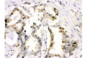 Immunohistochemistry (IHC) image for anti-Cyclin-Dependent Kinase 2 (CDK2) (AA 81-298) antibody (ABIN3043472)