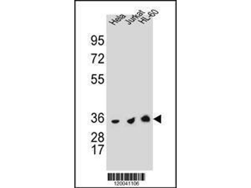 Western Blotting (WB) image for anti-TYSY (AA 265-294), (C-Term) antibody (ABIN1881964)