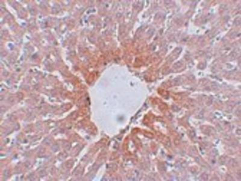 Immunohistochemistry (Paraffin-embedded Sections) (IHC (p)) image for anti-Angiotensin II Receptor, Type 2 (AGTR2) (Center) antibody (ABIN4278731)