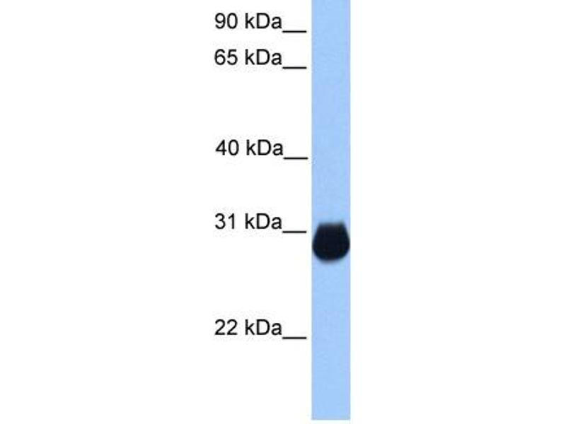 Western Blotting (WB) image for anti-Insulin-Like Growth Factor Binding Protein 7 (IGFBP7) (C-Term) antibody (ABIN310993)