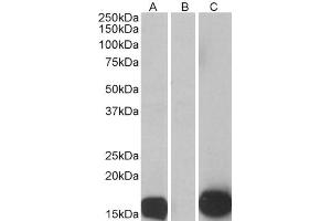 Image no. 3 for anti-S100 Calcium Binding Protein A7 (S100A7) (Internal Region) antibody (ABIN185647)