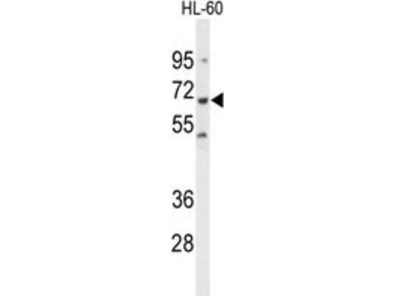 Western Blotting (WB) image for anti-Protein-tyrosine Phosphatase 1C (PTPN6) antibody (ABIN3001647)