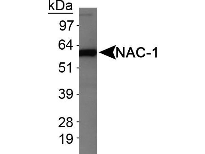 Western Blotting (WB) image for anti-Nucleus Accumbens Associated 1, BEN and BTB (POZ) Domain Containing (NACC1) antibody (ABIN259549)