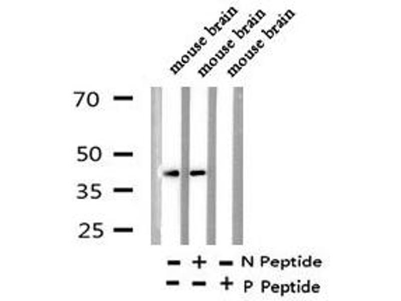 Western Blotting (WB) image for anti-Ephrin B1 (EFNB1) (pTyr313), (pTyr317) antibody (ABIN6270092)