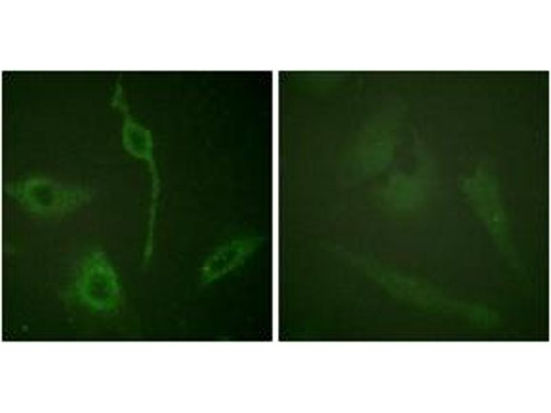 Immunofluorescence (IF) image for anti-PDGFRA antibody (Platelet-Derived Growth Factor Receptor, alpha Polypeptide) (ABIN1532638)