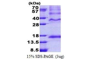 Image no. 1 for Inhibin, beta C (INHBC) (AA 237-352) protein (His tag) (ABIN6387244)