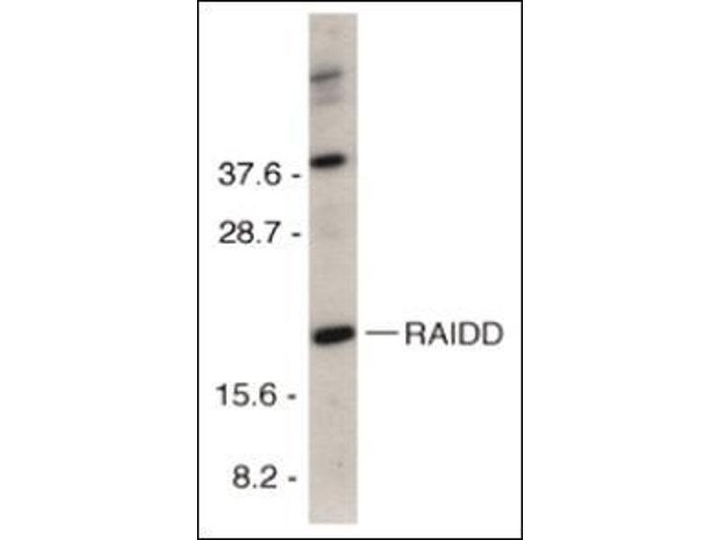 Western Blotting (WB) image for anti-CRADD antibody (CASP2 and RIPK1 Domain Containing Adaptor with Death Domain) (C-Term) (ABIN500563)