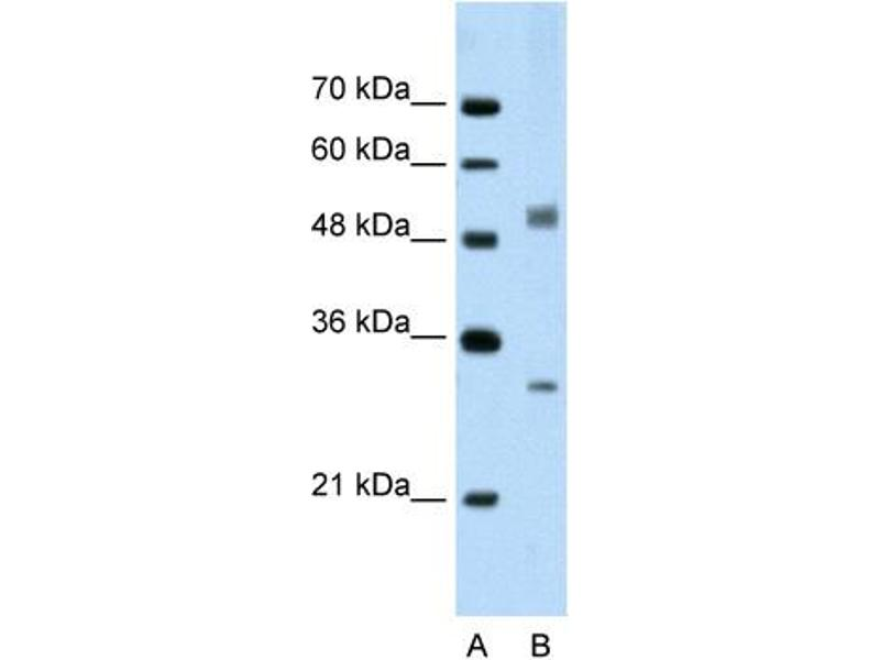 Western Blotting (WB) image for anti-Interferon Regulatory Factor 6 (IRF6) (C-Term) antibody (ABIN310490)