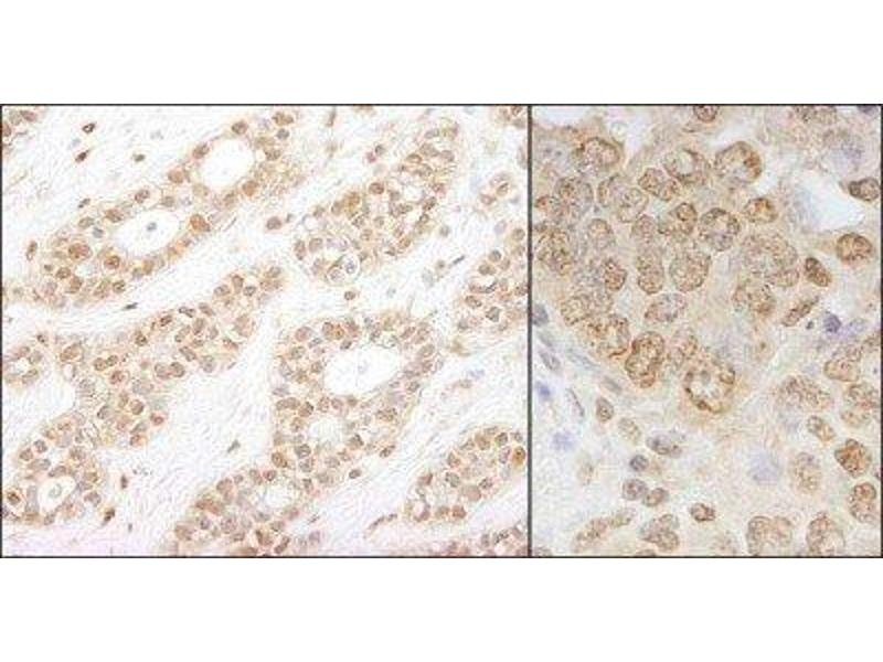 Immunohistochemistry (Paraffin-embedded Sections) (IHC (p)) image for anti-CHUK antibody (conserved Helix-Loop-Helix Ubiquitous Kinase) (AA 350-400) (ABIN438473)