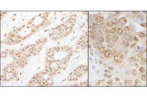 Immunohistochemistry (Paraffin-embedded Sections) (IHC (p)) image for anti-conserved Helix-Loop-Helix Ubiquitous Kinase (CHUK) (AA 350-400) antibody (ABIN438473)