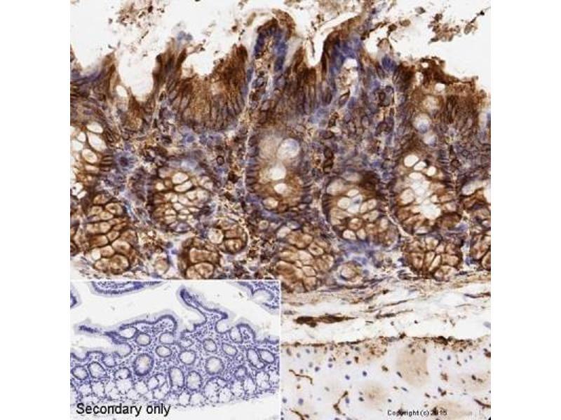 Immunohistochemistry (IHC) image for anti-alpha Tubulin (TUBA1) antibody (ABIN152113)
