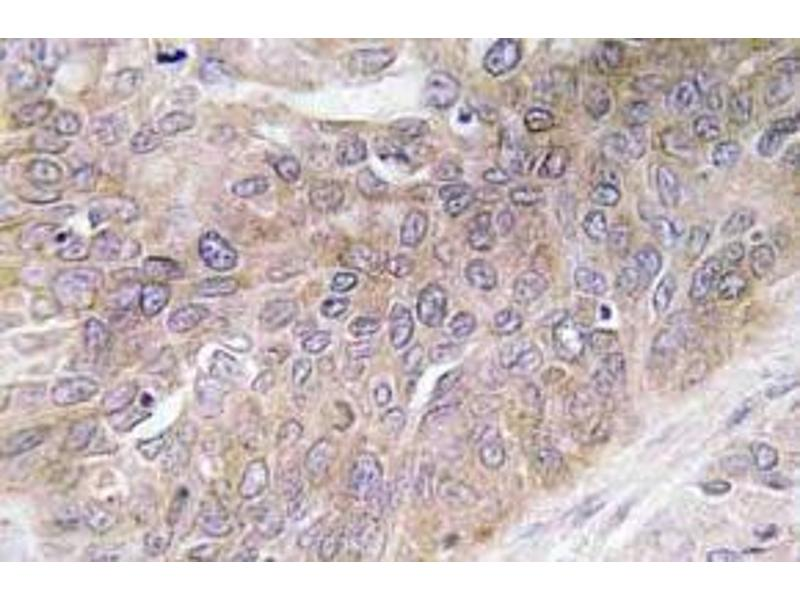 Immunohistochemistry (Paraffin-embedded Sections) (IHC (p)) image for anti-FIGF antibody (C-Fos Induced Growth Factor (Vascular Endothelial Growth Factor D)) (ABIN498667)