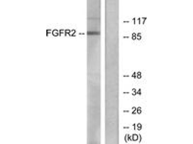 Western Blotting (WB) image for anti-Fibroblast Growth Factor Receptor 2 (FGFR2) (AA 471-520) antibody (ABIN1533272)