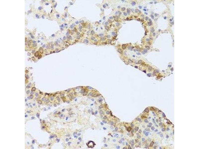 Immunohistochemistry (Paraffin-embedded Sections) (IHC (p)) image for anti-Pyruvate Dehydrogenase Kinase, Isozyme 3 (PDK3) antibody (ABIN6145393)