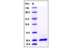 Image no. 1 for Phospholipase A2, Group IIA (Platelets, Synovial Fluid) (PLA2G2A) (AA 1-144) protein (His tag) (ABIN2004058)