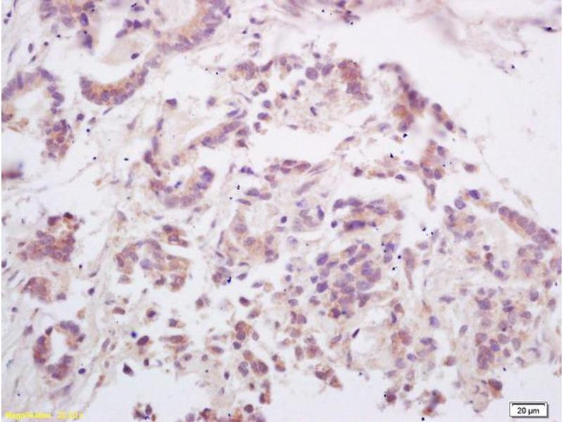 Immunohistochemistry (IHC) image for anti-TNFSF11 antibody (Tumor Necrosis Factor (Ligand) Superfamily, Member 11) (AA 270-317) (ABIN672696)