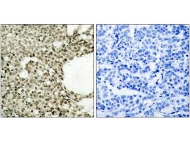Immunohistochemistry (IHC) image for anti-Signal Transducer and Activator of Transcription 1, 91kDa (STAT1) (AA 694-743), (pSer727) antibody (ABIN1531973)