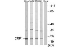 Image no. 1 for anti-Cysteine and Glycine-Rich Protein 1 (CSRP1) (AA 51-100) antibody (ABIN1533655)