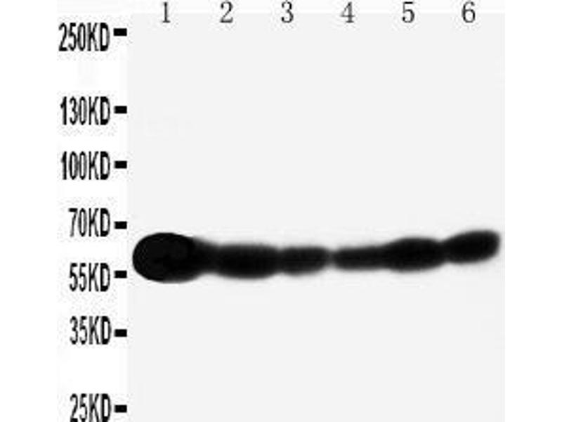 Western Blotting (WB) image for anti-SHC1 antibody (SHC (Src Homology 2 Domain Containing) Transforming Protein 1) (AA 424-440) (ABIN3044111)