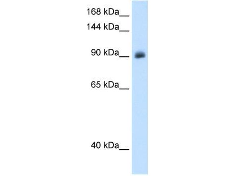 Western Blotting (WB) image for anti-Nuclear Receptor Subfamily 3, Group C, Member 2 (NR3C2) (Middle Region) antibody (ABIN2773864)