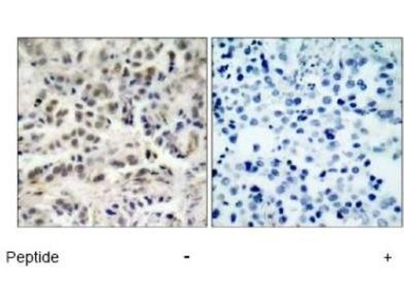 Immunohistochemistry (IHC) image for anti-Cyclin-Dependent Kinase Inhibitor 1B (p27, Kip1) (CDKN1B) antibody (ABIN4342483)