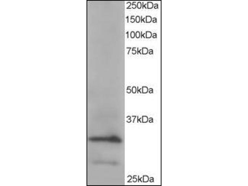 image for anti-ARPC2 antibody (Actin Related Protein 2/3 Complex, Subunit 2, 34kDa) (C-Term) (ABIN372935)