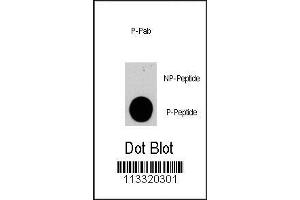 Dot Blot (DB) image for anti-PIK3CG antibody (Phosphoinositide-3-Kinase, Catalytic, gamma Polypeptide) (pSer1100) (ABIN389849)