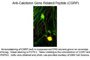 Image no. 1 for anti-Calcitonin-Related Polypeptide alpha (CALCA) antibody (ABIN6658144)