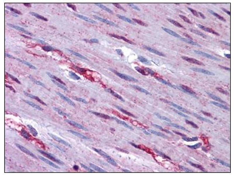 Immunohistochemistry (Paraffin-embedded Sections) (IHC (p)) image for anti-Forkhead Box O3 (FOXO3) (N-Term) antibody (ABIN784063)