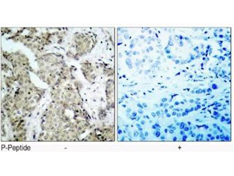 image for anti-Mitogen-Activated Protein Kinase Kinase 6 (MAP2K6) (pSer207) antibody (ABIN2625085)