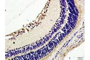 Immunohistochemistry (IHC) image for anti-TEK antibody (TEK Tyrosine Kinase, Endothelial) (N-Term) (ABIN1585797)