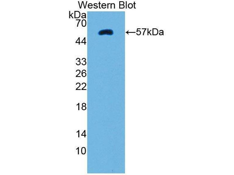 Western Blotting (WB) image for anti-PTK2B Protein tyrosine Kinase 2 beta (PTK2B) (AA 704-941) antibody (ABIN5014193)
