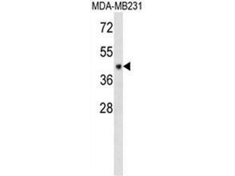 Western Blotting (WB) image for anti-Chromosome 6 Open Reading Frame 150 (C6orf150) (AA 273-303), (Middle Region) antibody (ABIN950947)
