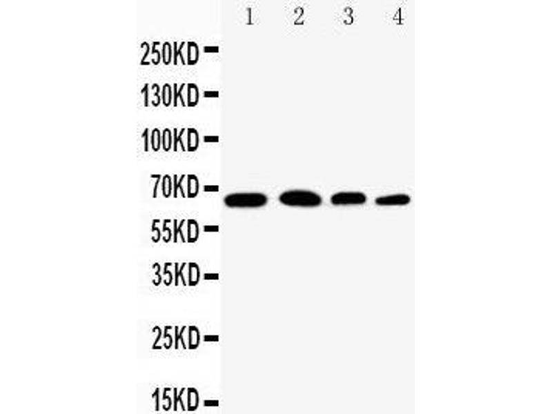 Western Blotting (WB) image for anti-Nuclear Factor-KB P65 (NFkBP65) (AA 143-158), (Middle Region) antibody (ABIN3044253)
