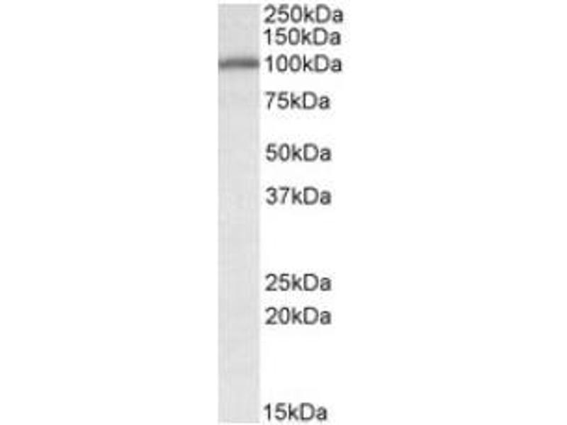 image for anti-Calnexin antibody (CANX) (Internal Region) (ABIN401659)